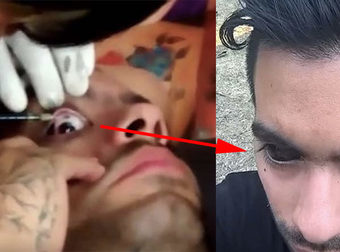 Watch This Guy Get His Eyeball Tattooed!!!