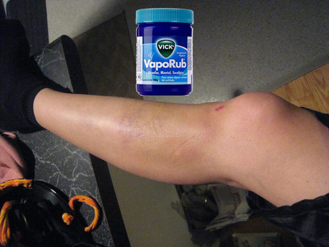 When you mix a pinch of salt and VapoRub and apply it to a fresh bruise, it's said to break up the discoloration.
