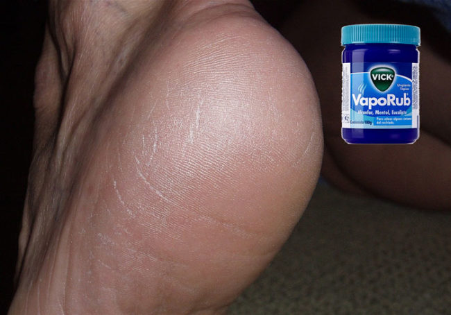 Feel the healing effects right away when you rub cracked heels and elbows with the ointment.