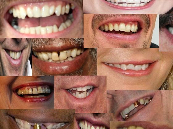 Can You Name The Celebrity By Their Smile?
