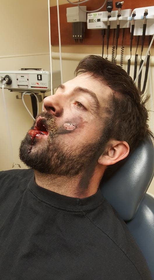 The result was catastrophic -- Hall lost seven teeth and suffered second-degree burns on his face and neck.
