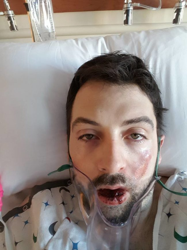 "Hall spent three days recovering in the hospital. On Facebook, he <a href=""https://www.facebook.com/andrew.hall.3910/posts/10100193309728068?pnref=story"" target=""_blank"">said</a>, ""I know vapes help people quit smoking, and that's amazing. I just want to bring to light this is possible, that they can explode without warning. I would have said 'no way that's possible,' until now."""