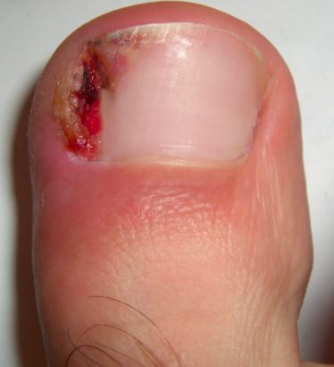 Doctors will remove the infected tissue and effectively dig out the nail.
